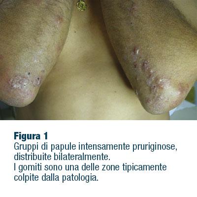 La celiachia e il dermatologo